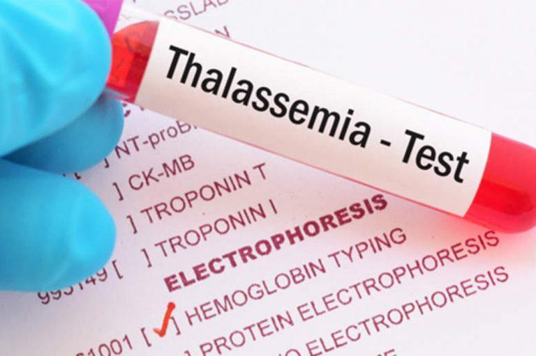 Защо е важно да се изследваме за таласемия?